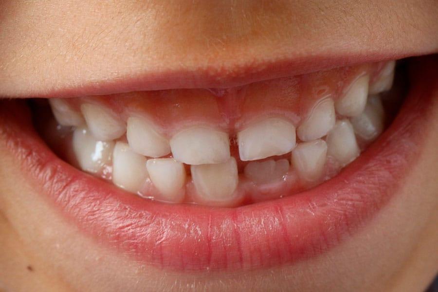 dentição saudável